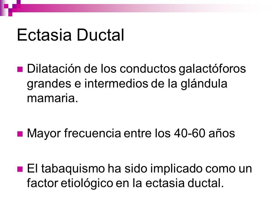 Ectasia Ductal Dilatación de los conductos galactóforos grandes e intermedios de la glándula mamaria.