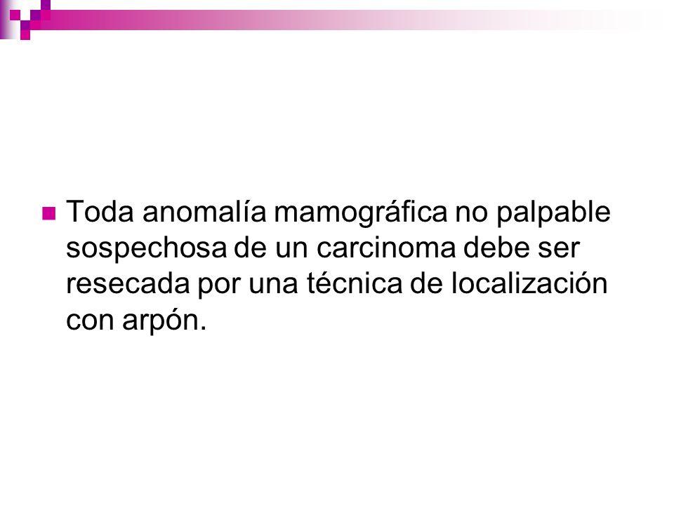 Toda anomalía mamográfica no palpable sospechosa de un carcinoma debe ser resecada por una técnica de localización con arpón.