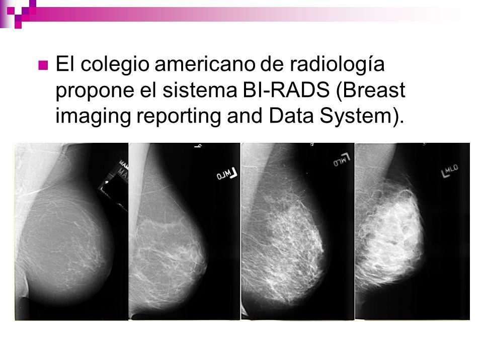 El colegio americano de radiología propone el sistema BI-RADS (Breast imaging reporting and Data System).