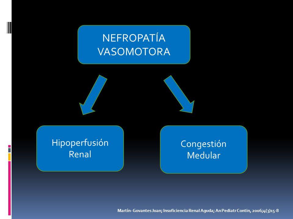 NEFROPATÍA VASOMOTORA Hipoperfusión Congestión Renal Medular