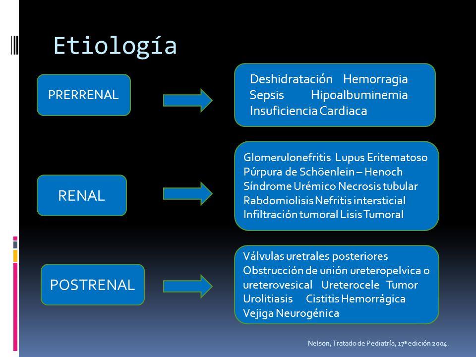 Etiología RENAL POSTRENAL Deshidratación Hemorragia