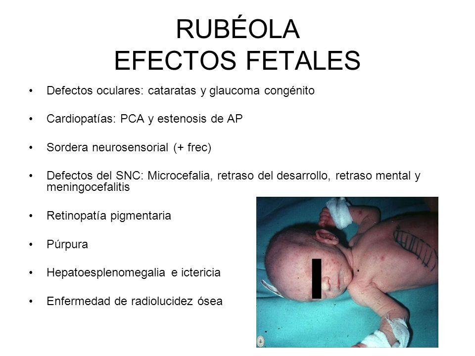 RUBÉOLA EFECTOS FETALES