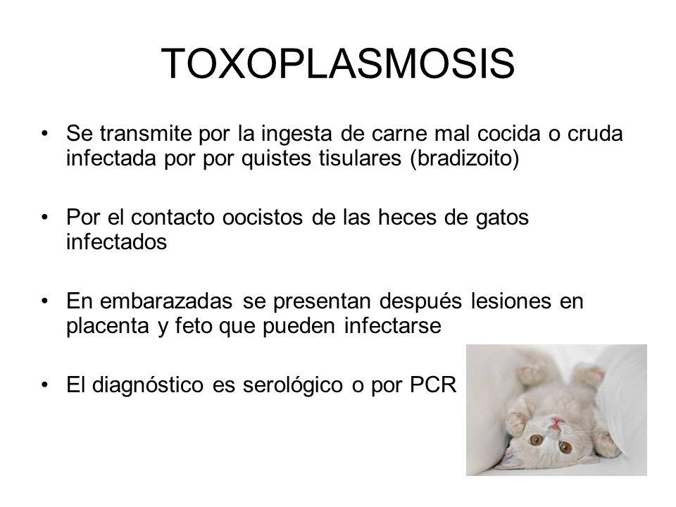 TOXOPLASMOSISSe transmite por la ingesta de carne mal cocida o cruda infectada por por quistes tisulares (bradizoito)