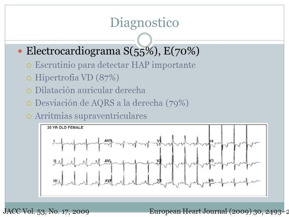 Diagnostico Electrocardiograma S(55%), E(70%)