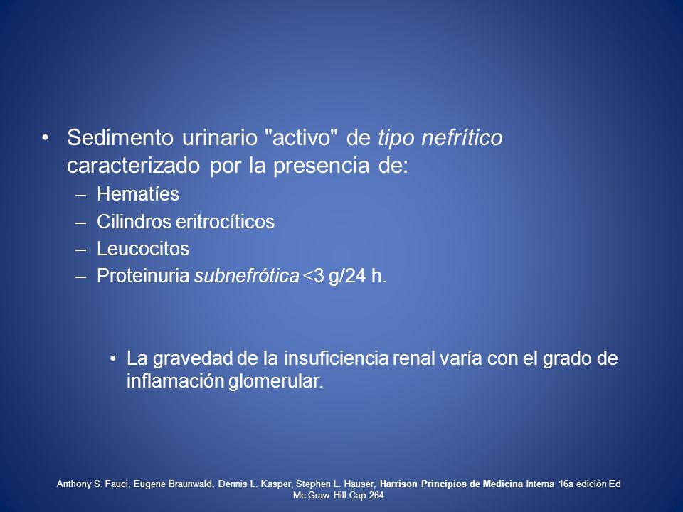 Sedimento urinario activo de tipo nefrítico caracterizado por la presencia de: