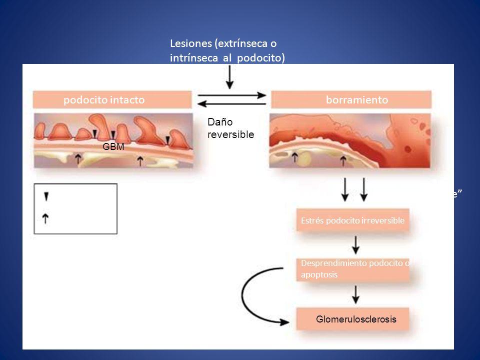 Lesiones (extrínseca o intrínseca al podocito)