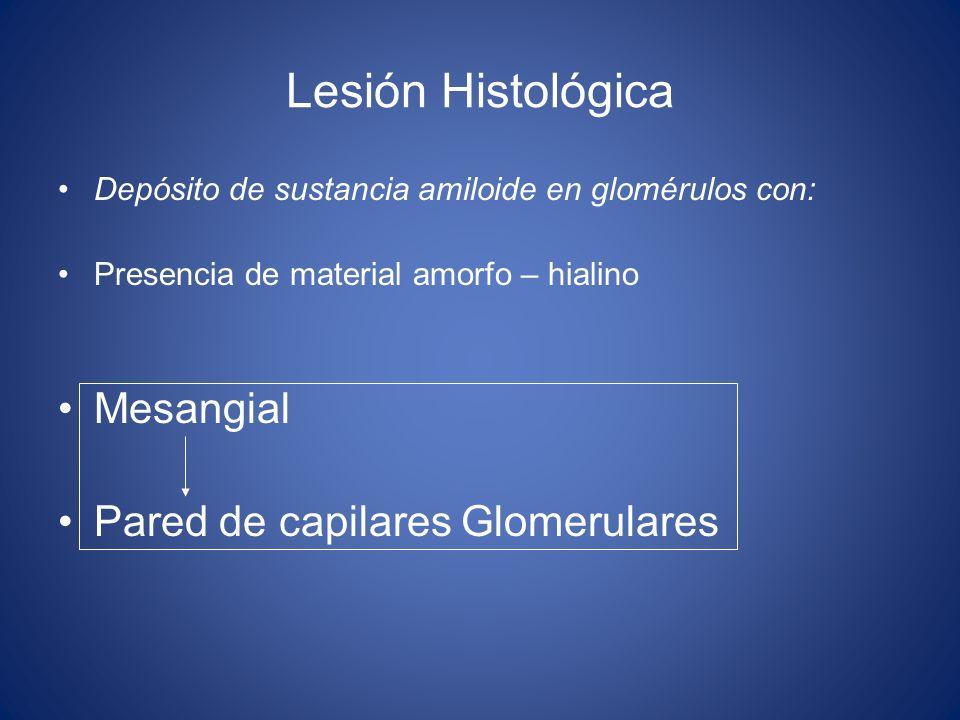Lesión Histológica Mesangial Pared de capilares Glomerulares