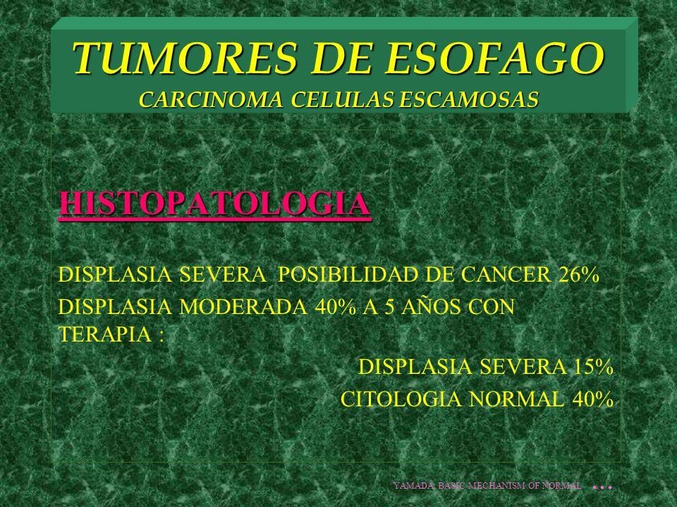 TUMORES DE ESOFAGO CARCINOMA CELULAS ESCAMOSAS