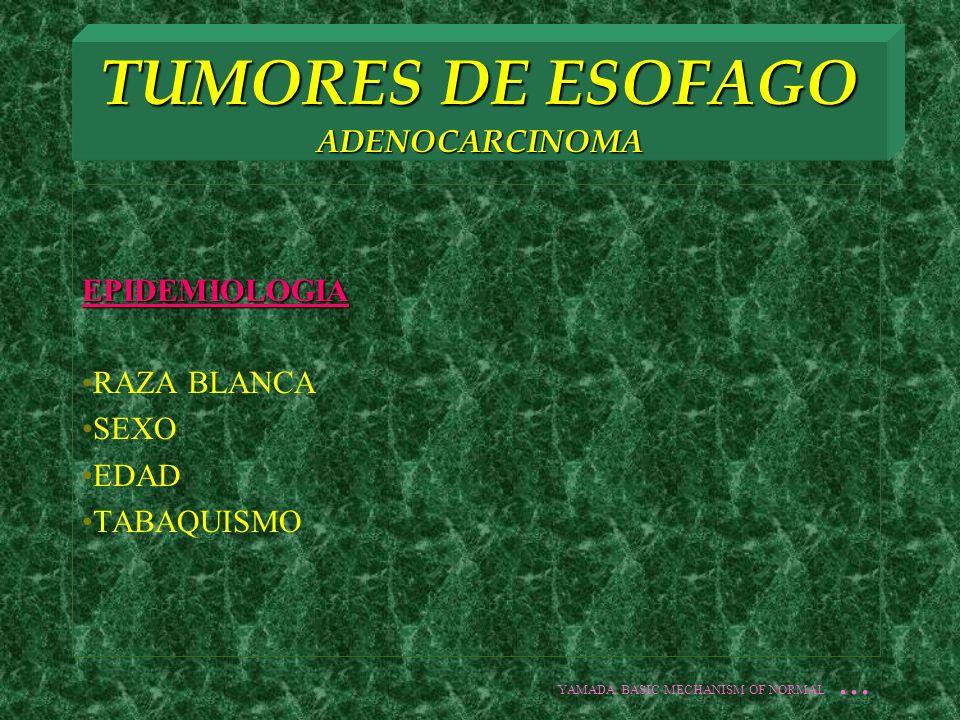 TUMORES DE ESOFAGO ADENOCARCINOMA