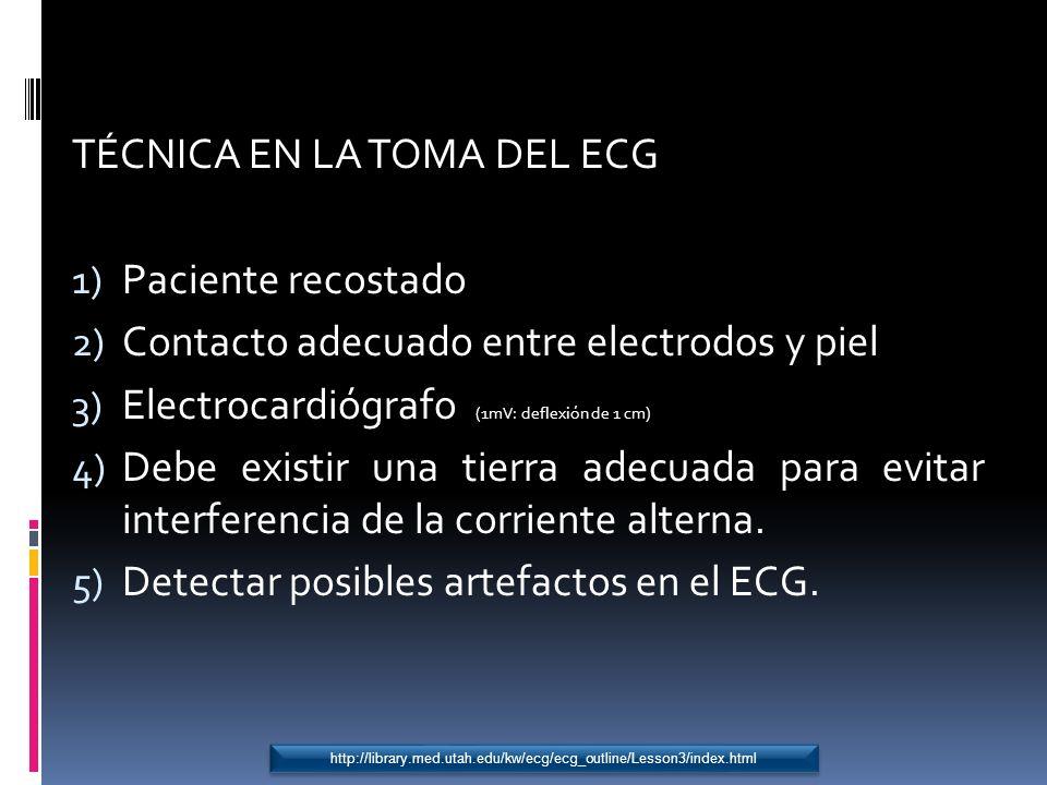 TÉCNICA EN LA TOMA DEL ECG Paciente recostado
