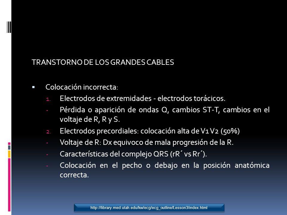 TRANSTORNO DE LOS GRANDES CABLES Colocación incorrecta:
