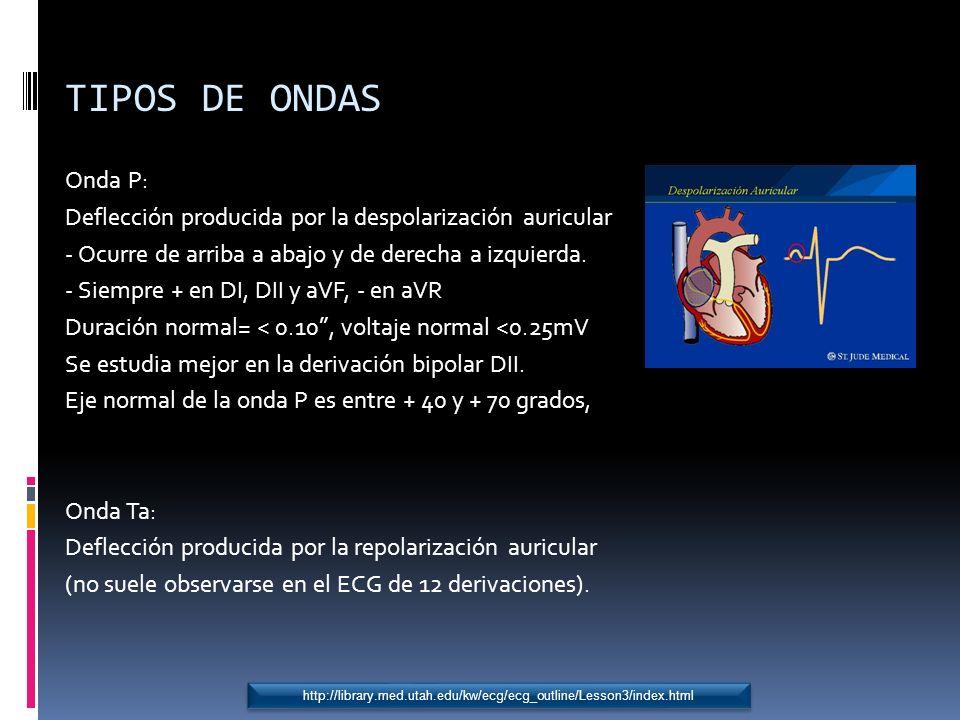 TIPOS DE ONDAS Onda P: Deflección producida por la despolarización auricular. - Ocurre de arriba a abajo y de derecha a izquierda.