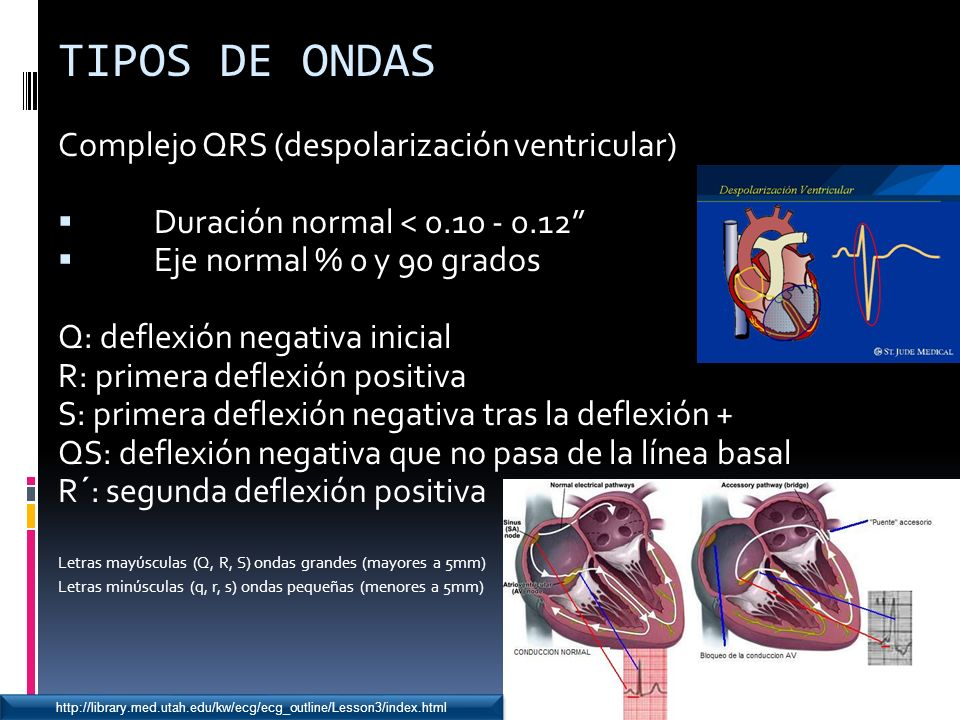 TIPOS DE ONDAS Complejo QRS (despolarización ventricular)