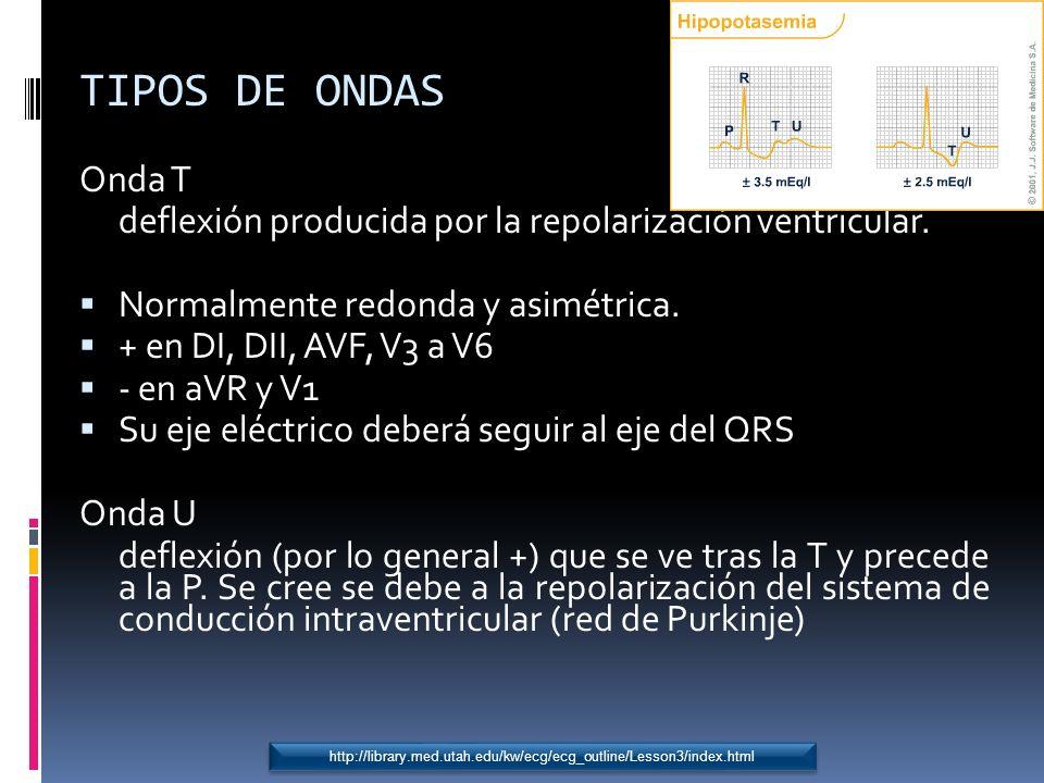TIPOS DE ONDAS Onda T. deflexión producida por la repolarización ventricular. Normalmente redonda y asimétrica.