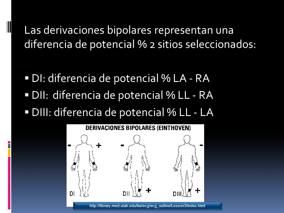 DI: diferencia de potencial % LA - RA