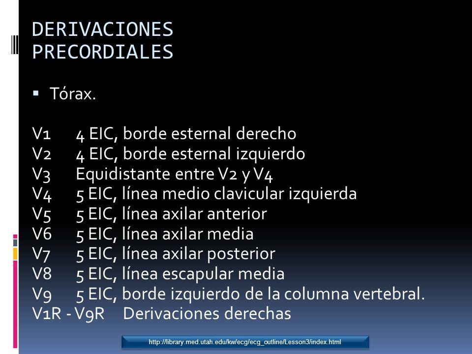 DERIVACIONES PRECORDIALES Tórax. V1 4 EIC, borde esternal derecho