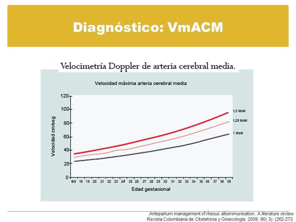 Diagnóstico: VmACM Antepartum management of rhesus alloimmunisation. A literature review.