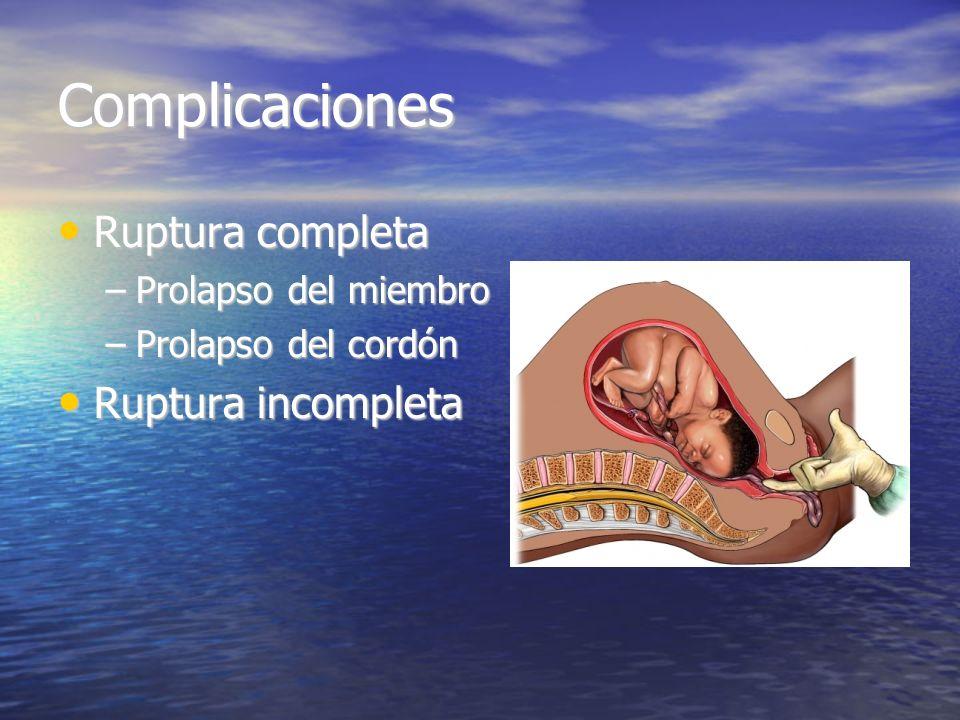 Complicaciones Ruptura completa Ruptura incompleta