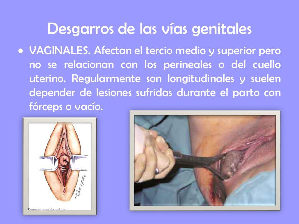 Desgarros de las vías genitales