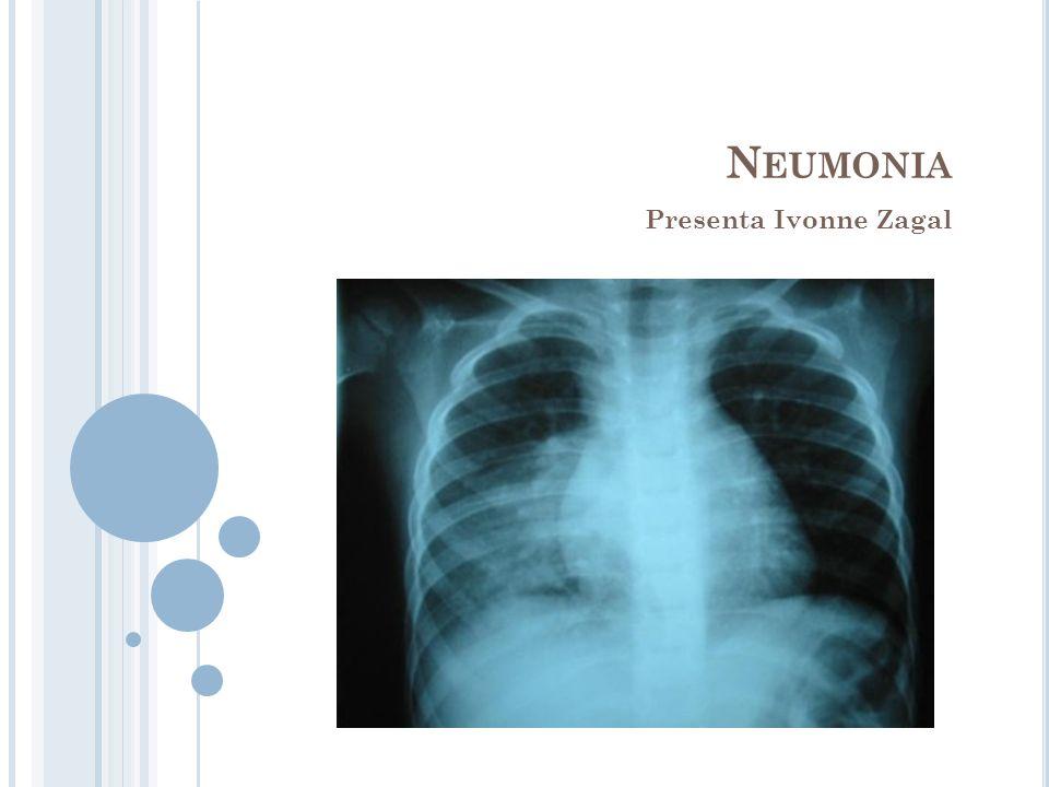 Neumonia Presenta Ivonne Zagal