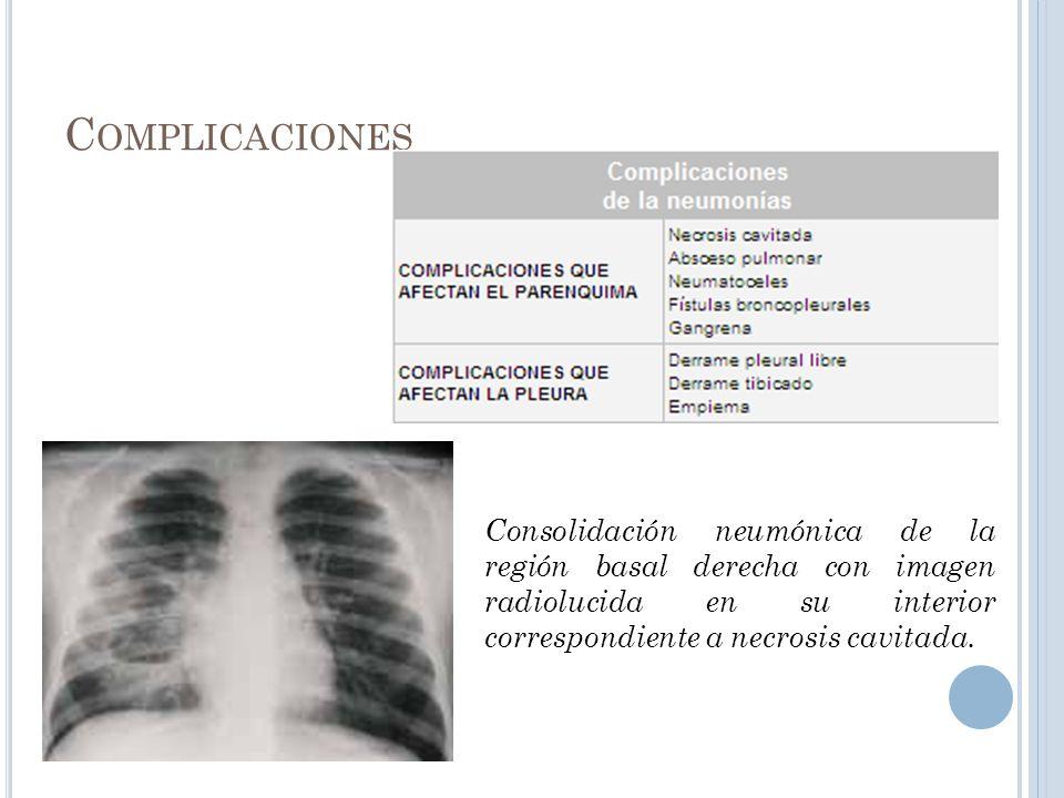 Complicaciones Consolidación neumónica de la región basal derecha con imagen radiolucida en su interior correspondiente a necrosis cavitada.
