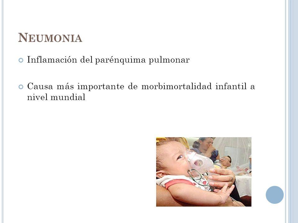 Neumonia Inflamación del parénquima pulmonar
