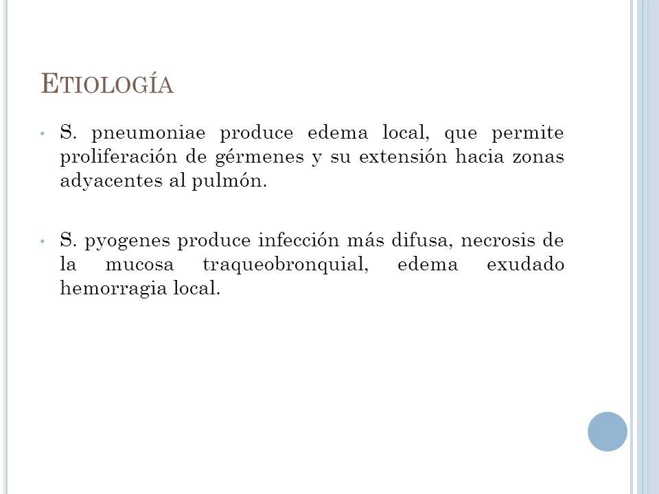Etiología S. pneumoniae produce edema local, que permite proliferación de gérmenes y su extensión hacia zonas adyacentes al pulmón.