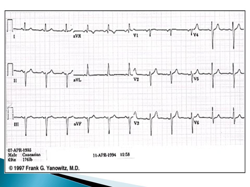 EKG eje izquierdo