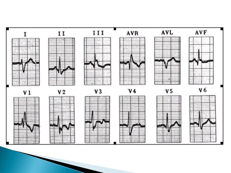 EKG eje derecho