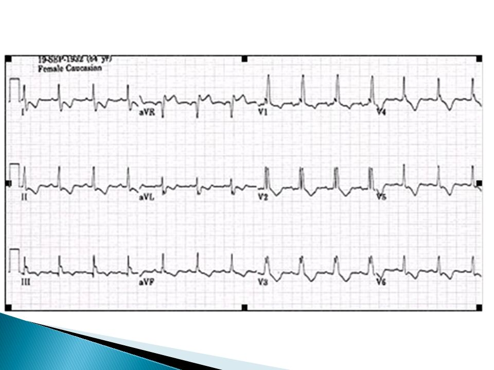 EKG eje vertical