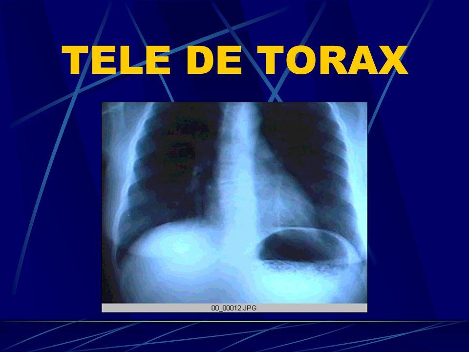 TELE DE TORAX