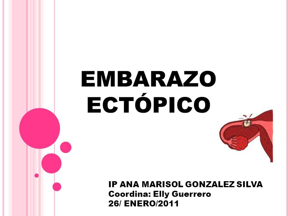 EMBARAZO ECTÓPICO IP ANA MARISOL GONZALEZ SILVA