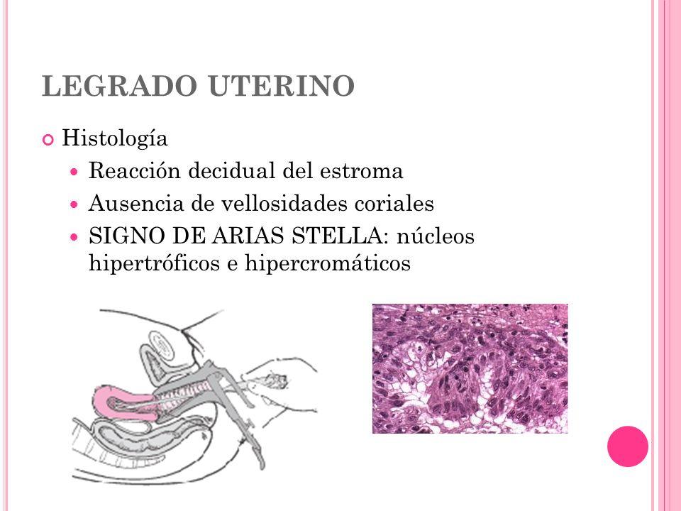 LEGRADO UTERINO Histología Reacción decidual del estroma