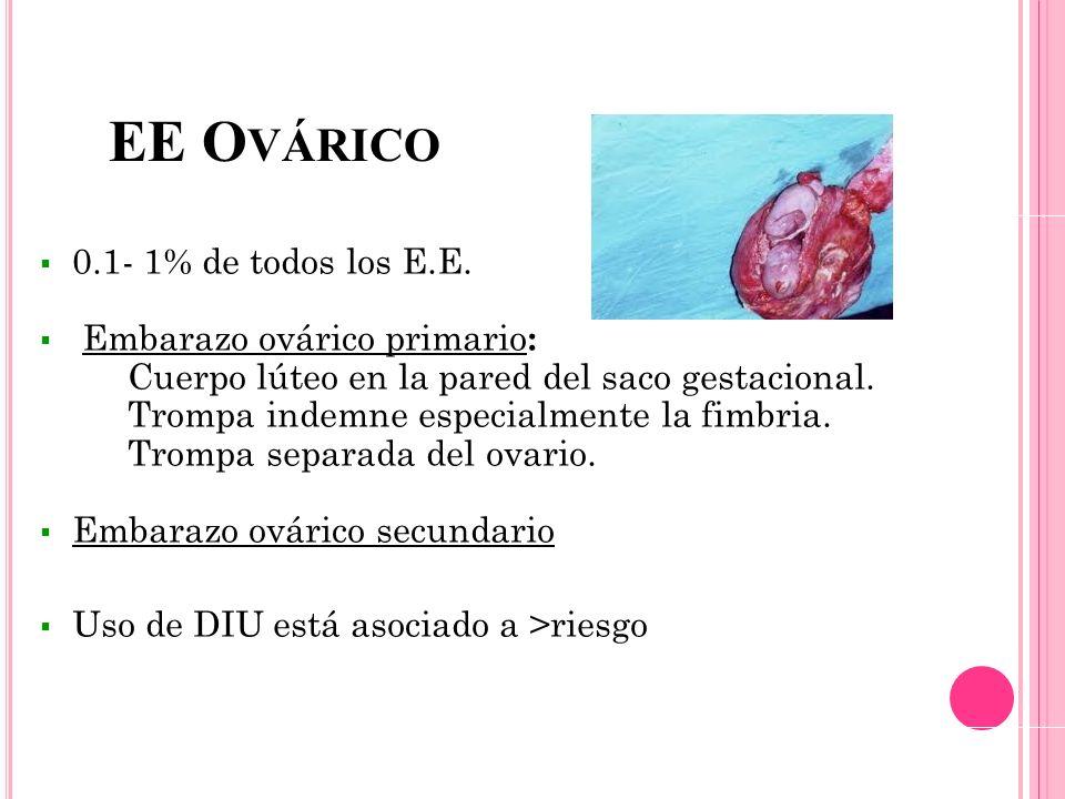 EE Ovárico 0.1- 1% de todos los E.E. Embarazo ovárico primario: