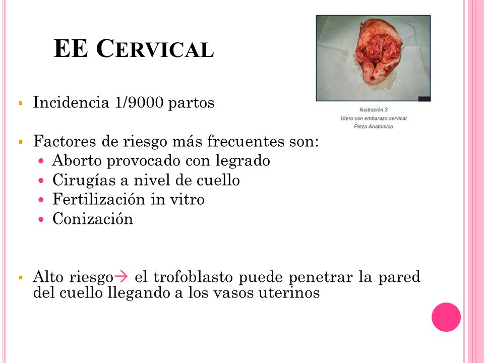 EE Cervical Incidencia 1/9000 partos