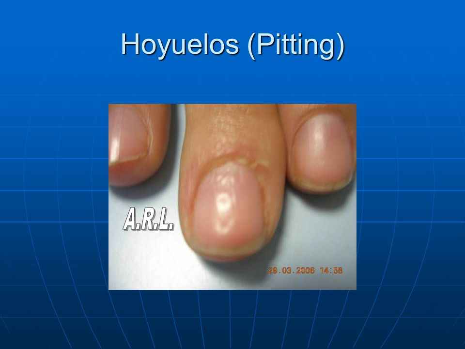 Hoyuelos (Pitting) A.R.L.