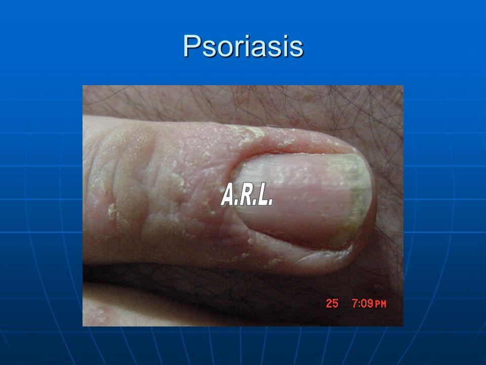 Psoriasis A.R.L.