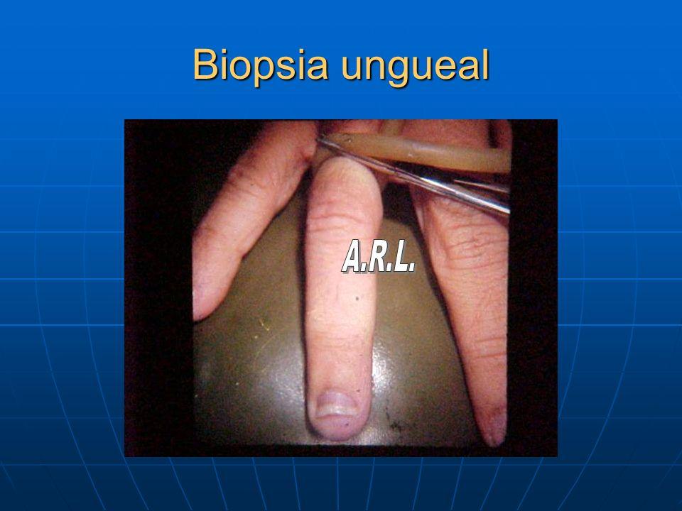 Biopsia ungueal A.R.L.
