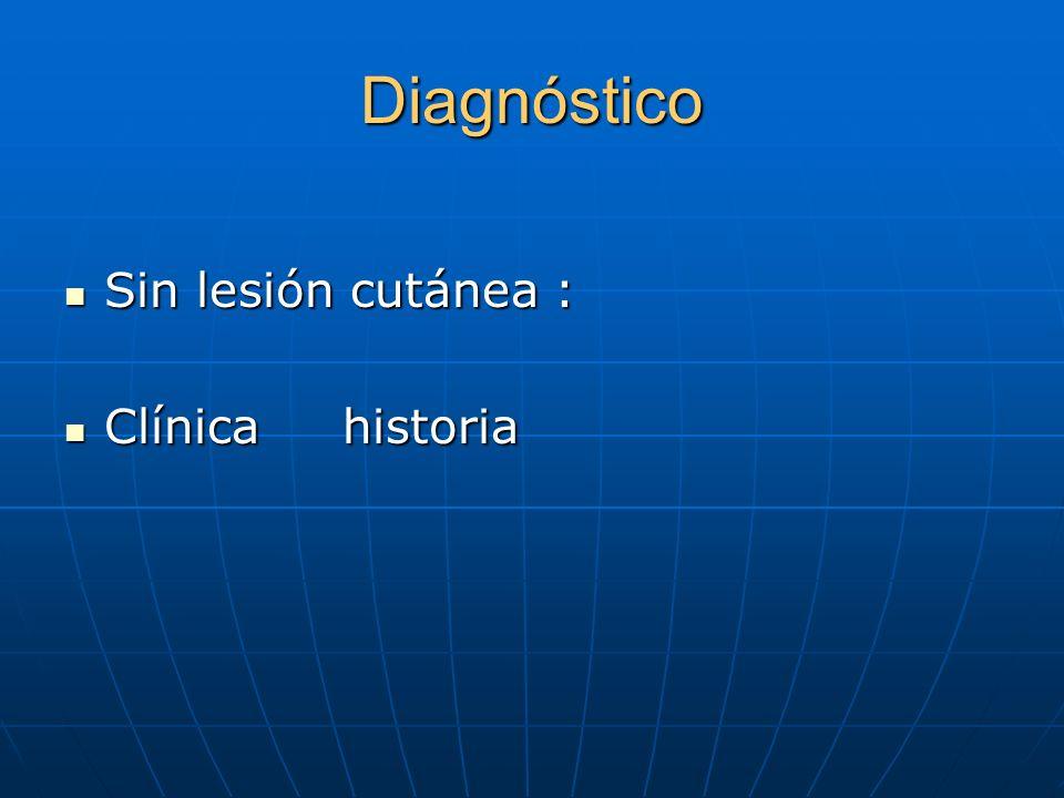 Diagnóstico Sin lesión cutánea : Clínica historia