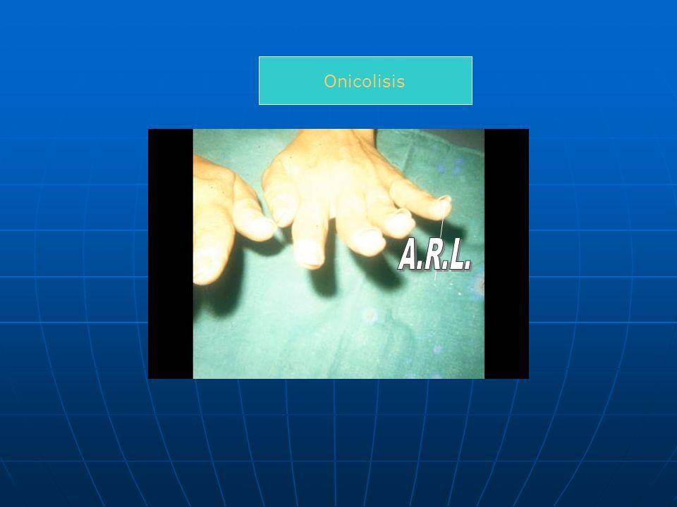 Onicolisis A.R.L.