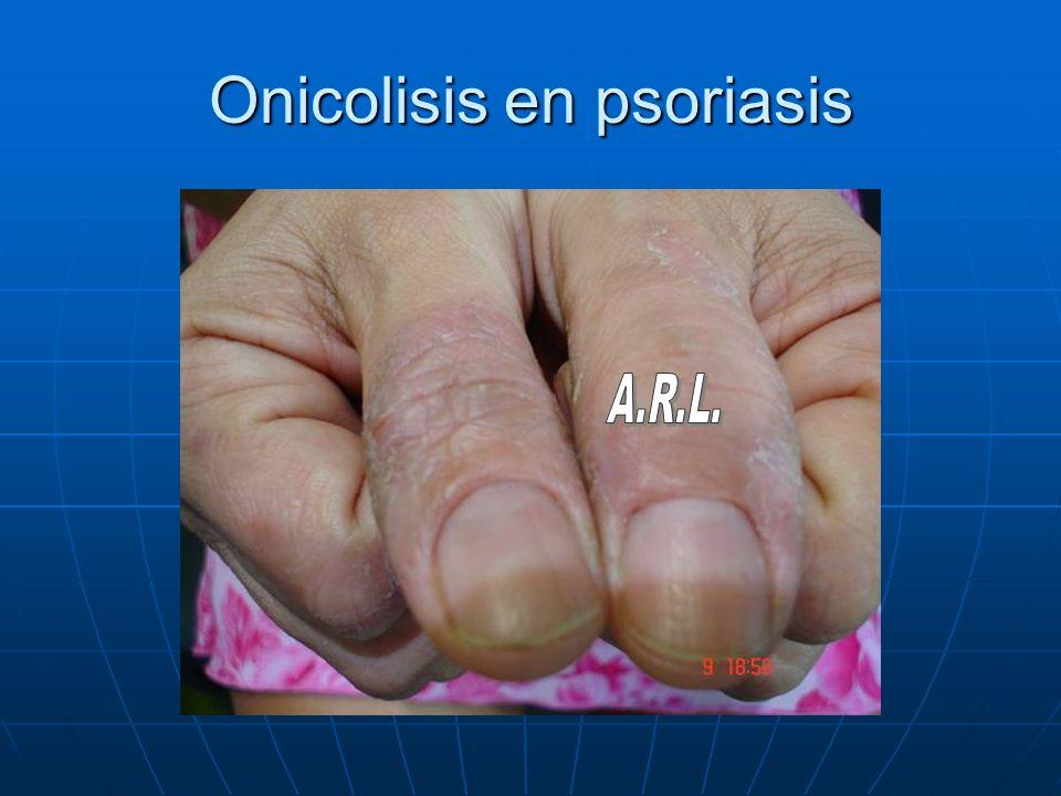 Onicolisis en psoriasis