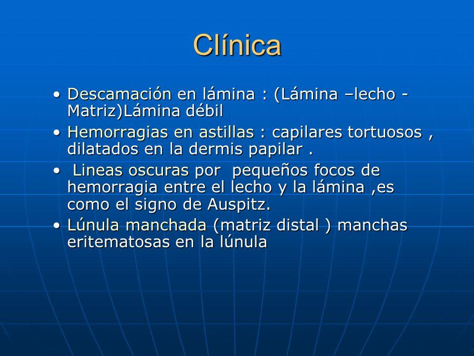 Clínica Descamación en lámina : (Lámina –lecho -Matriz)Lámina débil