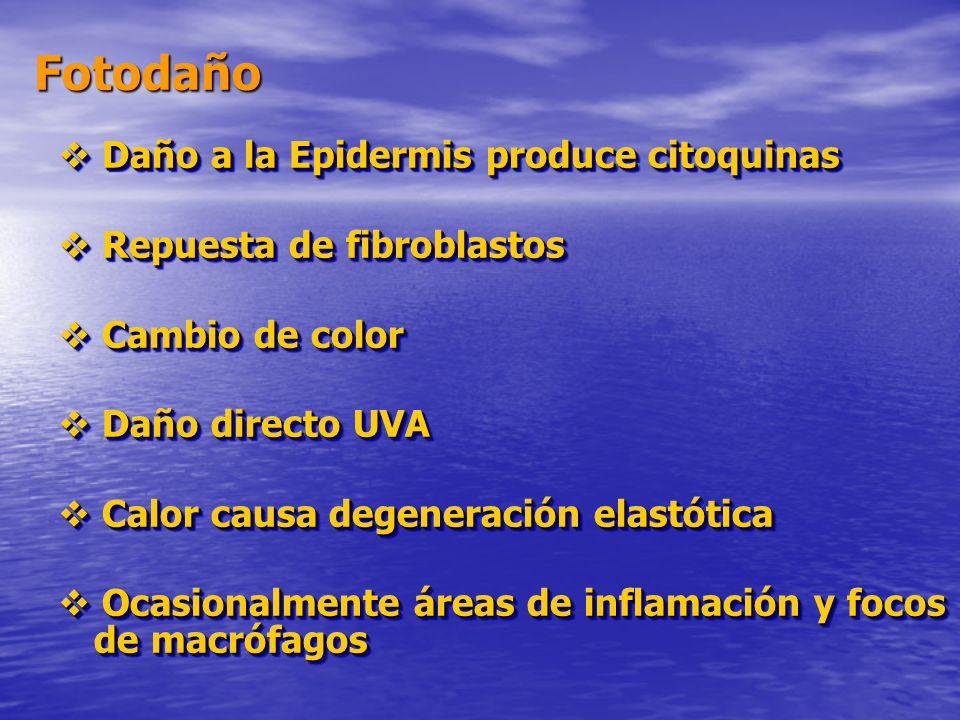 Fotodaño  Daño a la Epidermis produce citoquinas