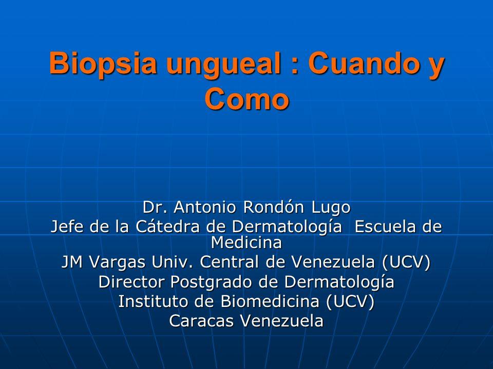 Biopsia ungueal : Cuando y Como