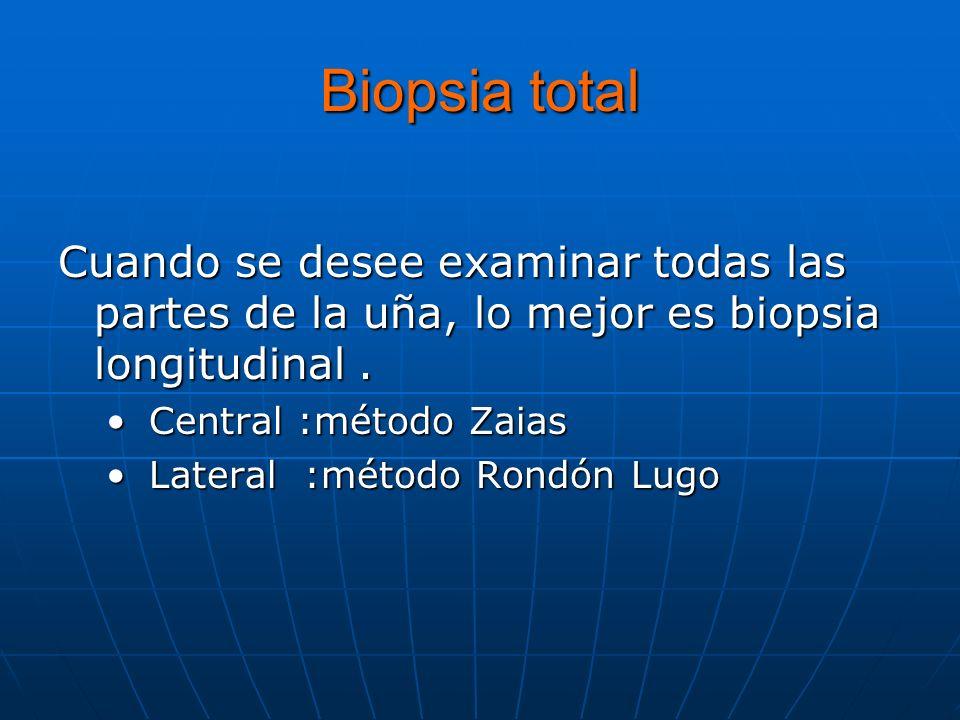 Biopsia total Cuando se desee examinar todas las partes de la uña, lo mejor es biopsia longitudinal .