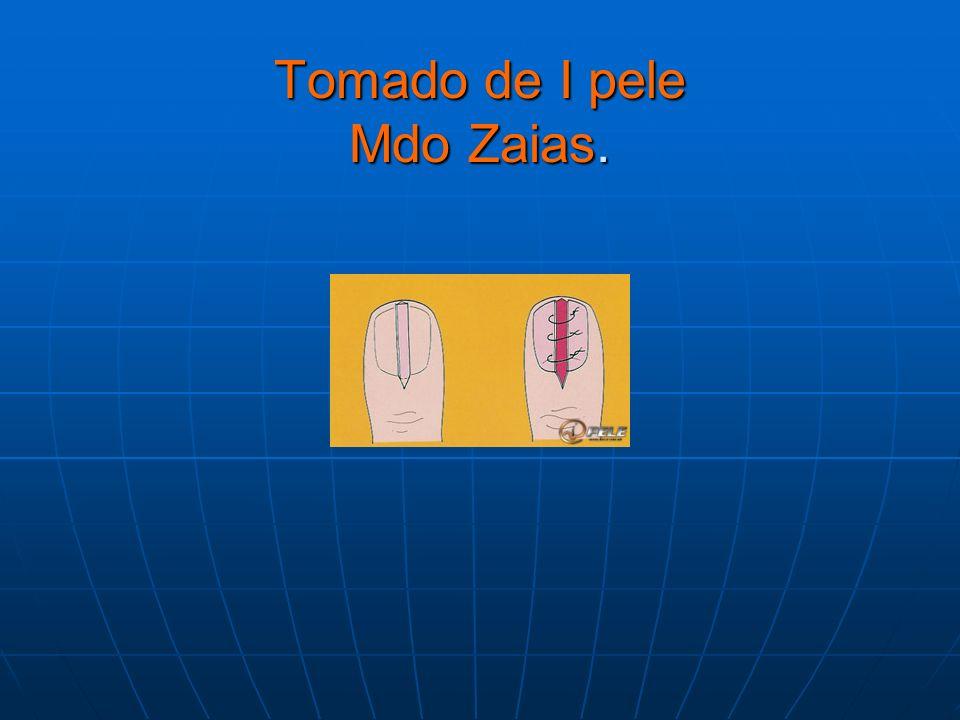 Tomado de I pele Mdo Zaias.