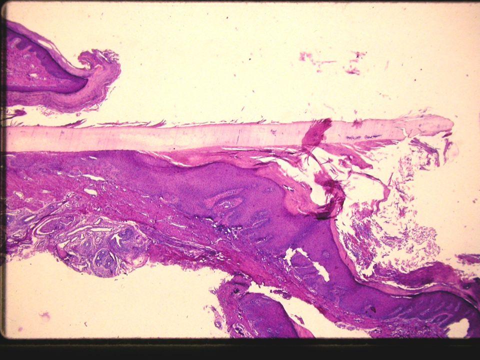 Psoriasis: Onicolisis, hiperqueratosis subungueal