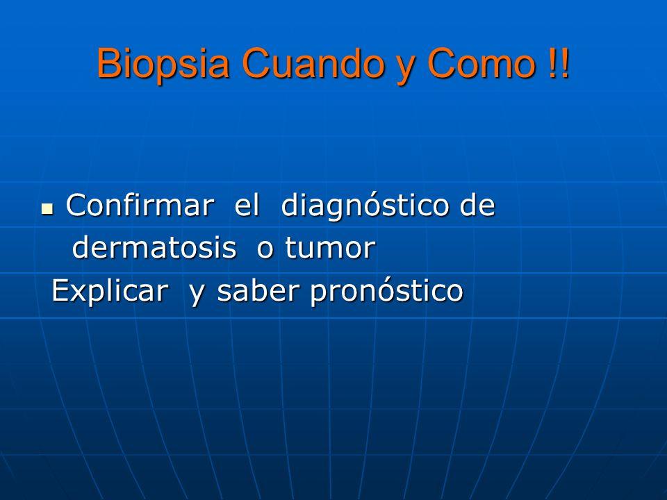 Biopsia Cuando y Como !! Confirmar el diagnóstico de