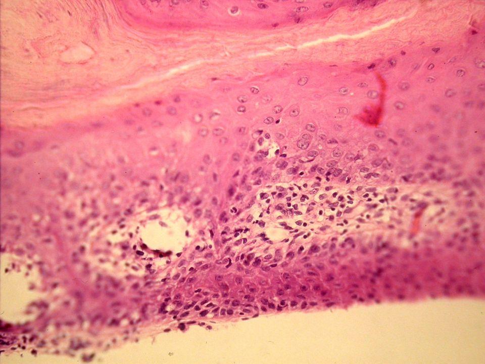 Liquen plano: Infiltrado linfocítico en banda