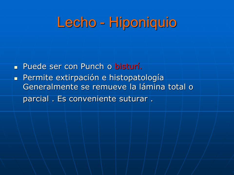 Lecho - Hiponiquio Puede ser con Punch o bisturí.